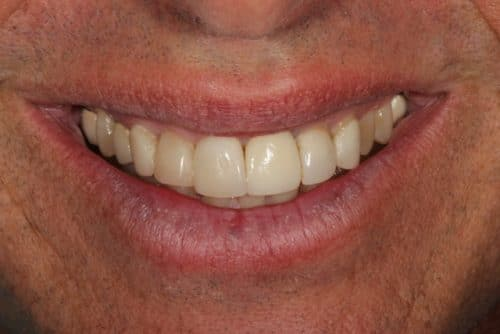 before successful veneers case image