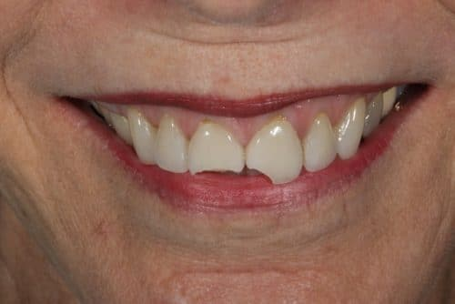 patient before ritter and ramsey perform porcelain veneer services