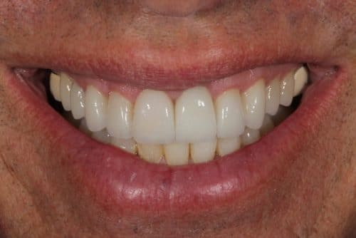 tooth veneers client post operation
