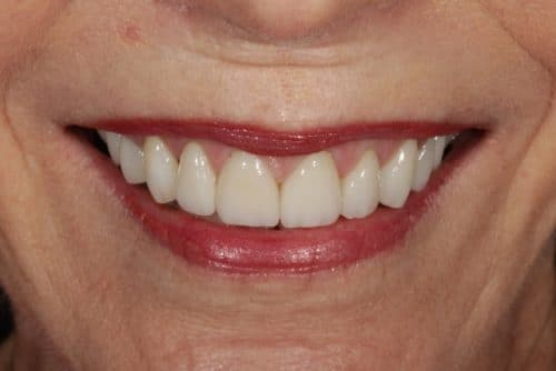 happy, healthy smile after porcelain veneers