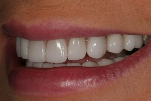 Porcelain Dental Crowns Jupiter Fl Palm Beach Gardens