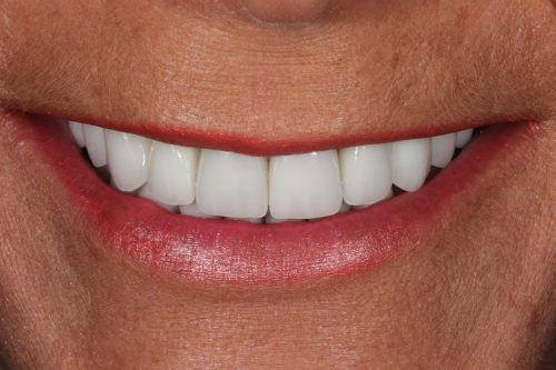 Porcelain Veneer Patient 1 After Cosmetic Dentistry