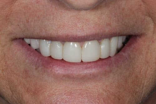 Ritter and Ramsey Jupiter Palm Beach Gardens Before Porcelain Veneers Image 3 before procedure