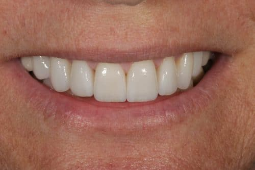 Ritter and Ramsey Jupiter Palm Beach Gardens After Porcelain Veneers Image 4 after tooth veneers