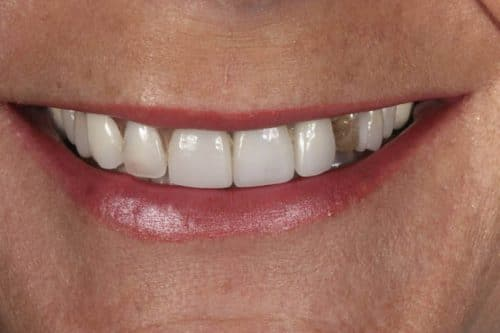 Porcelain Veneer Patient 1 Before Cosmetic Dentistry