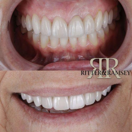 RitterandRamsey_Cosmetic_Dentist_Jupiter,FL