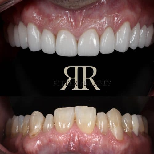 RitterandRamsey_Cosmetic_Dentistry
