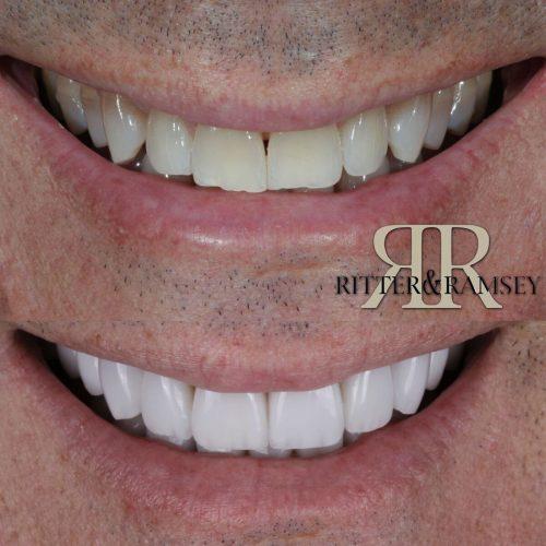 RitterandRamsey_Porcelain_Veneers_Smile_Design_Jupiter,FL